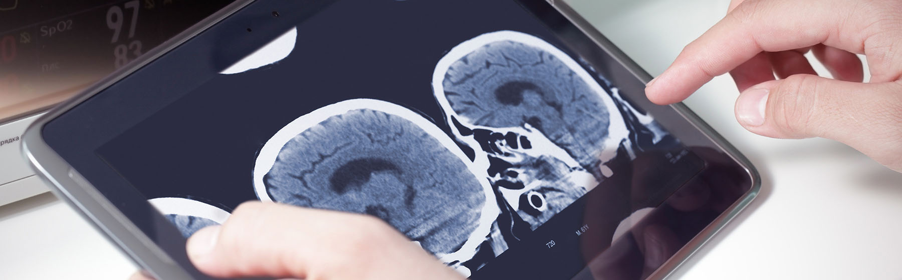 doctors hands holding tablet to review head scans